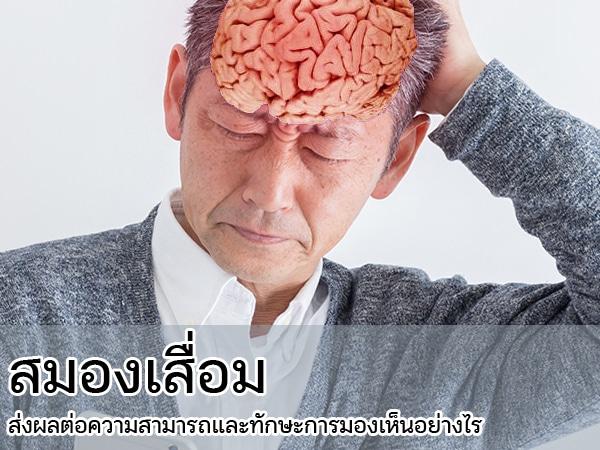 สมองเสื่อม